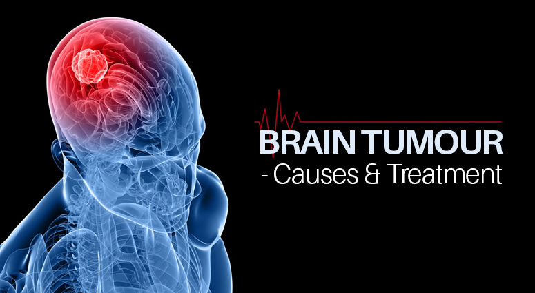 Signs Of Brain Tumor