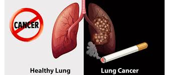 Lung Cancer Symptoms And Causes